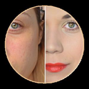 Comment cacher de l'acné ou des boutons avec du maquillage ?!