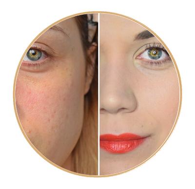 profiter de gros rabais nouvelle version meilleur endroit Comment cacher de l'acné ou des boutons avec du maquillage ?! -